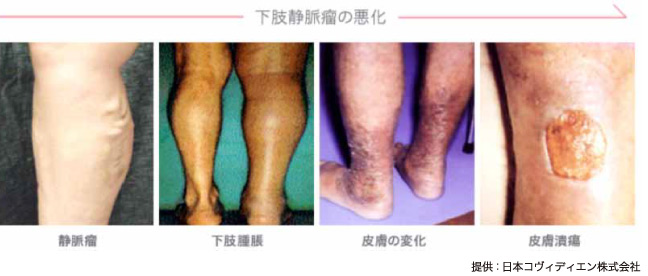 下肢静脈瘤の悪化例